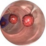 polypes-rectaux-docteur-desantis-chirurgie-viscerale-digestive-proctologie-nice