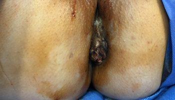 hémorroïdes - docteur desantis chirurgie digestive et viscérale