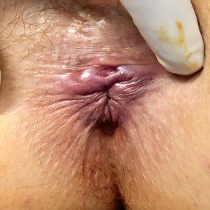 docteur-desantis-chirurgie-viscerale-digestive-proctologie-nice