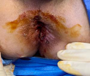 condylomes-MST-intervention-docteur-desantis-chirurgie-viscerale-digestive-proctologie-nice